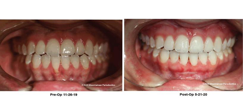 Gum Grafting Mountaineer Periodontics