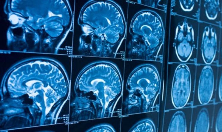 imagenes-del-cerebro-muestran-mas-sintom