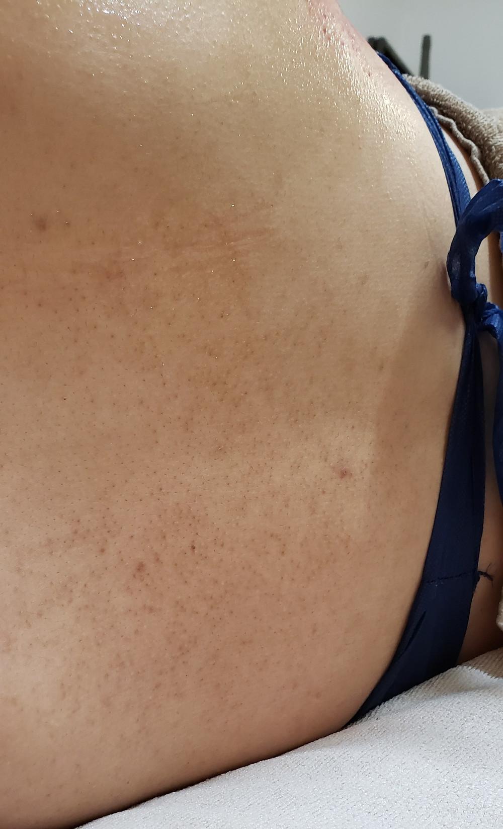 高周波による施術の痕 筋膜リリースで緩和
