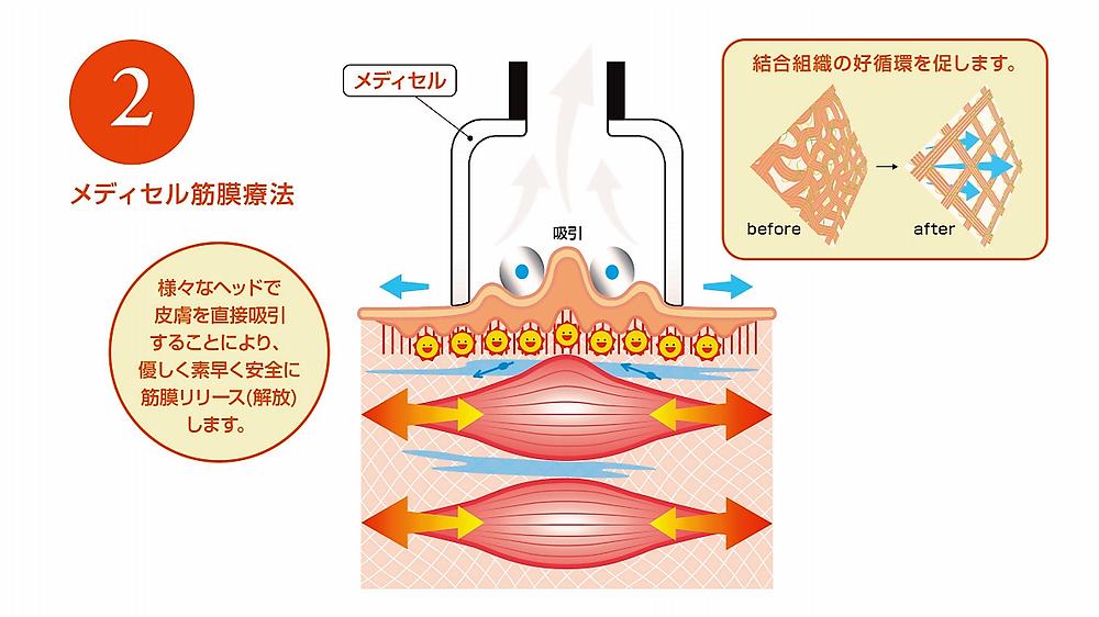 皮膚吸引 結合組織