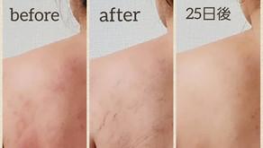 循環は長年のアトピー性皮膚炎に変化をもたらす!