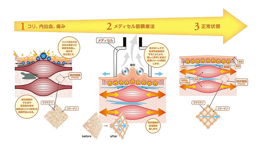 筋膜リリース リンパ液 血管