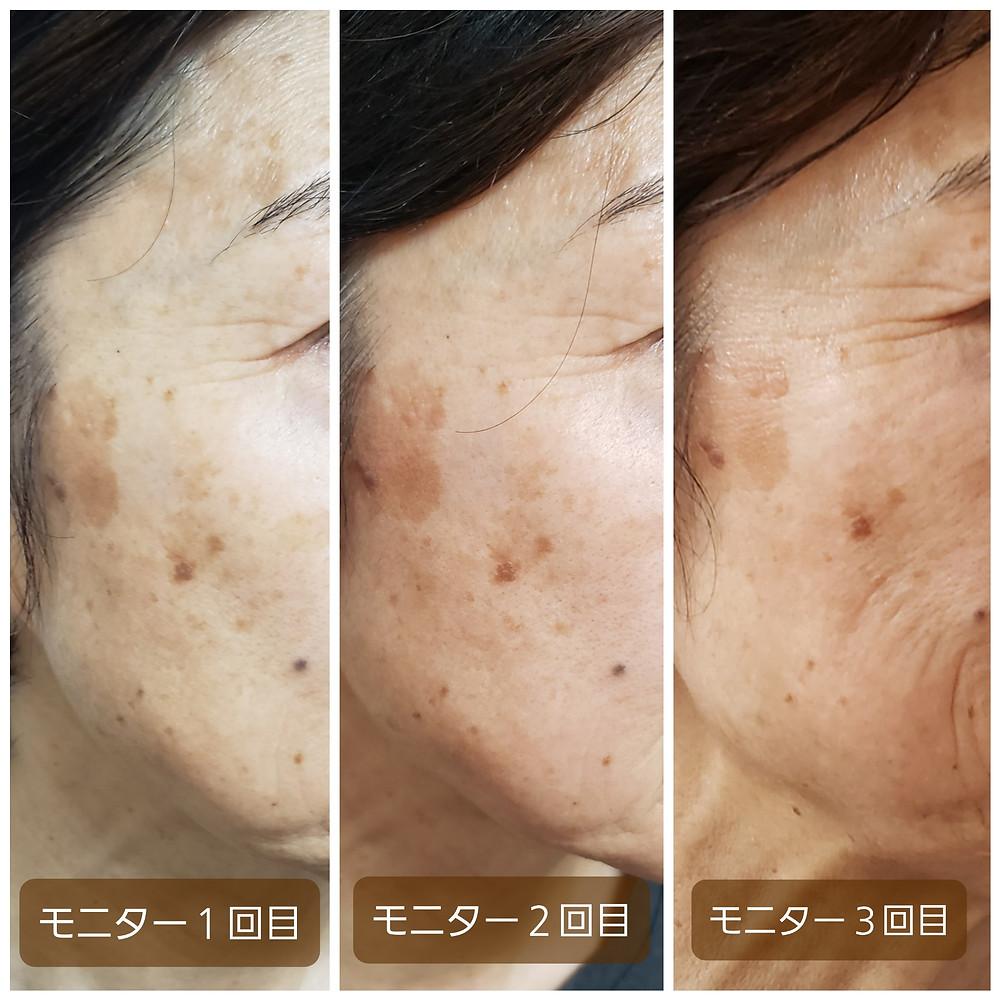 筋膜リリース小顔矯正でのシミの変化