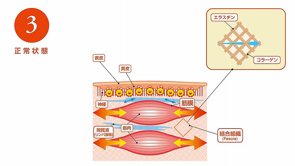 正常状態 結合組織(fascia)にゆとりができる