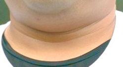 筋膜リリース 美首