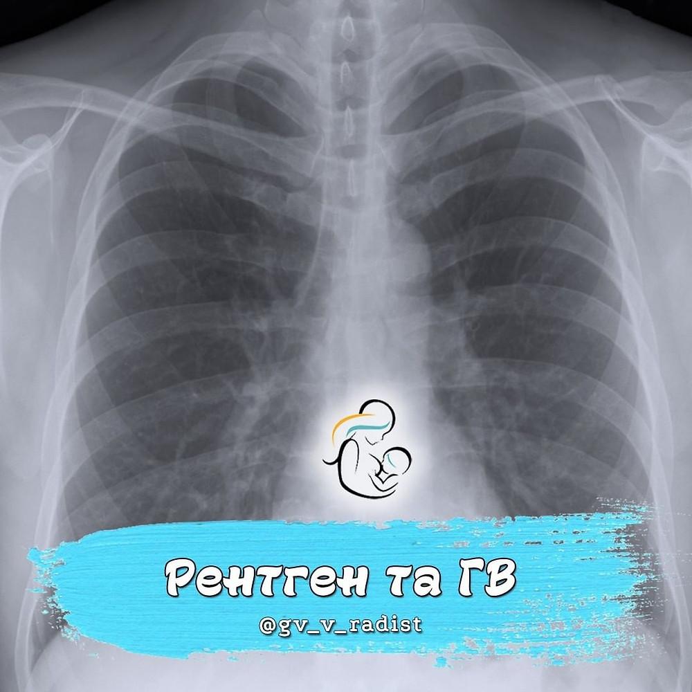 рентген при гв, флюорографія на гв, чи безпечно робити рентген годуючій мамі, рентген зуба і гв