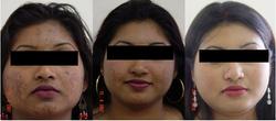 Pigmentation & Acne Treatment