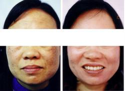 Pigmentation Treatment