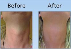 Anti-Aging Neck Treatment