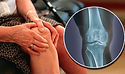 Knee-osteoarthritis-symptoms-Experts-sai