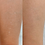 Thumbnail: Micropigmentação de Cicatriz, Estrias, Manchas ou Vitiligo - A partir de: