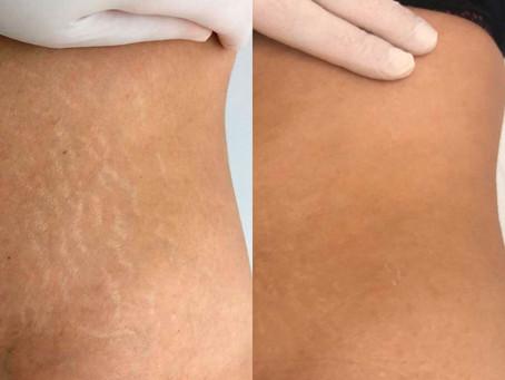 Os cuidados na micropigmentação para cobertura de marcas da pele