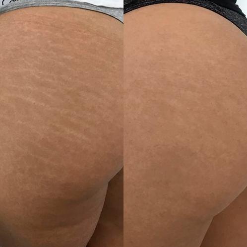 Micropigmentação de Cicatriz, Estrias, Manchas ou Vitiligo - A partir de: