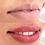 Thumbnail: Micropigmentação de Lábios