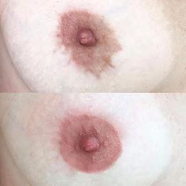 Micropigmentação de Areolas