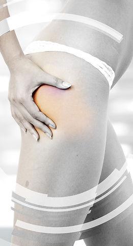 Institut de beauté Nathéa Wanze cellulite dermotonie endermologie