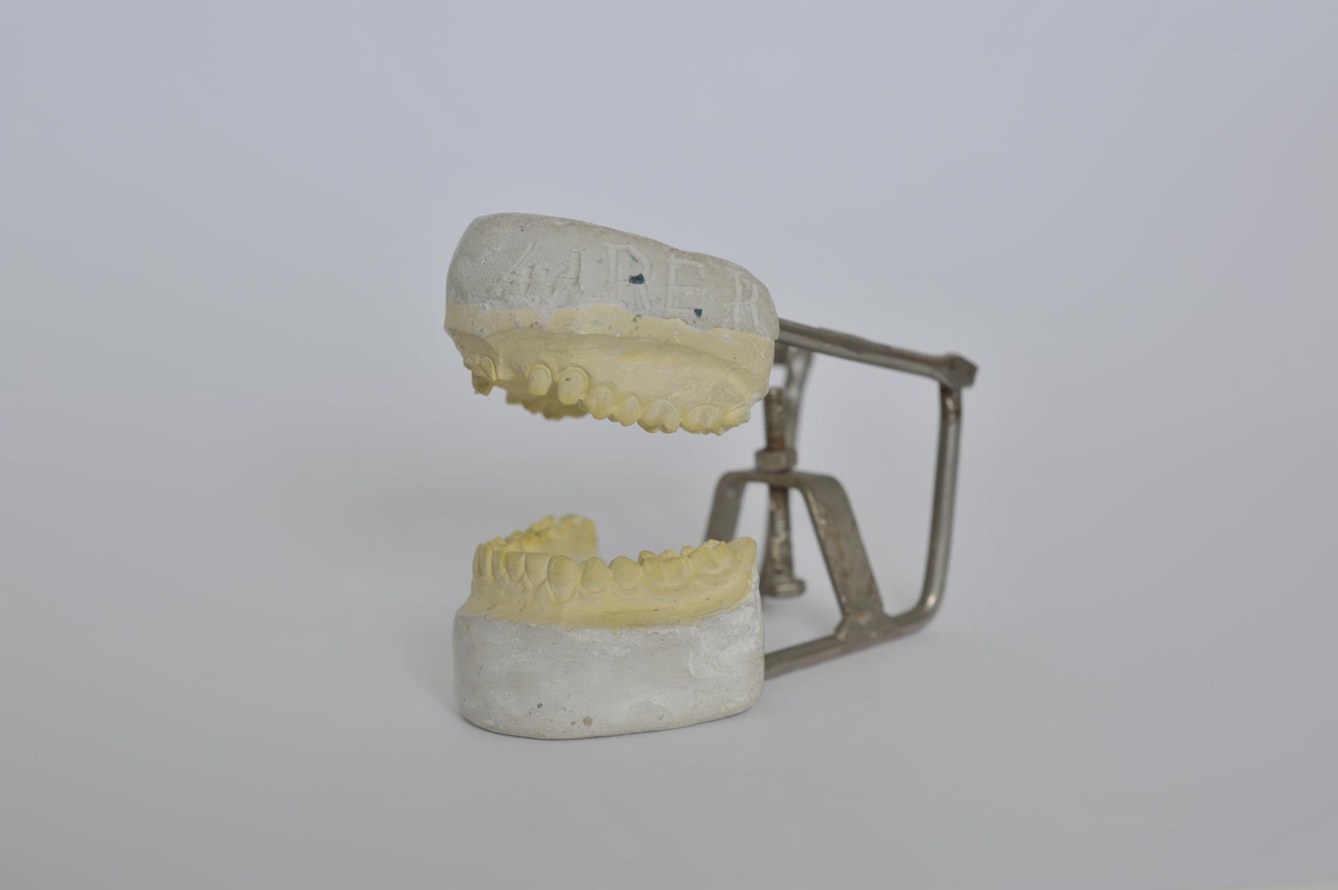 19. calco dentale