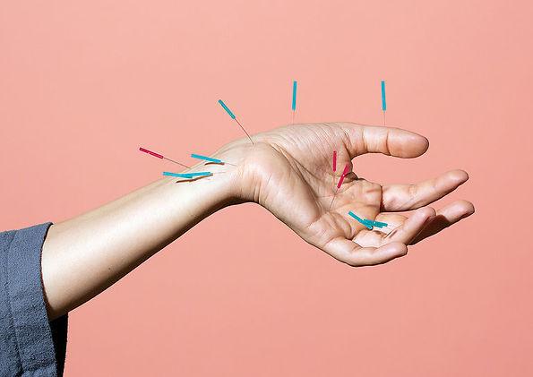 acu hand.jpg