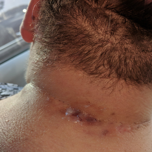 Back of neck