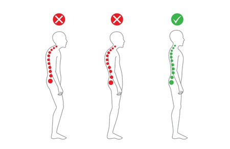 Fix Your Posture Today..