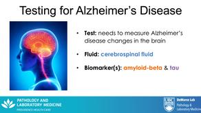 Video: Testing for Alzheimer's disease