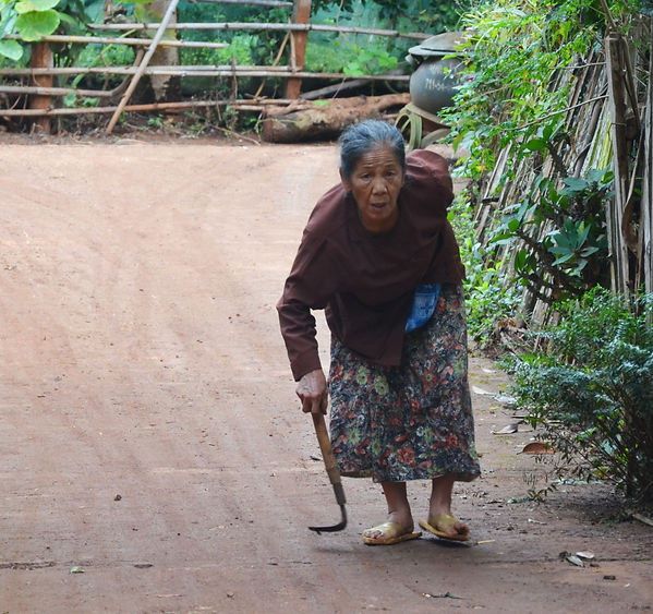 This type of back affliction is common among the poor farmers in Thailand.