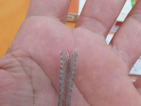 Evitando las  amputaciones en el pie diabético