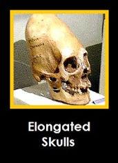 Elongated%20Skulls_edited.jpg