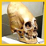Elongated Skulls.png