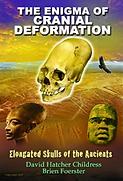 Elongated Skulls - Enigma of Cranial Def