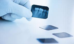 Dentystycznych rentgenowskie