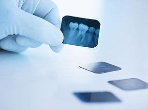 Zahnzusatversicherung Dresden, Zahnzusatzversicherungen Vergleichen