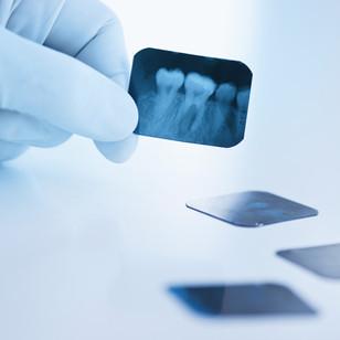 Диагностика и особенности зубных кист.