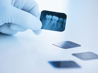 Dentista negligente que extrajo un diente sano