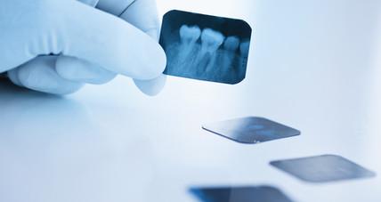 Kaj počne endodont?
