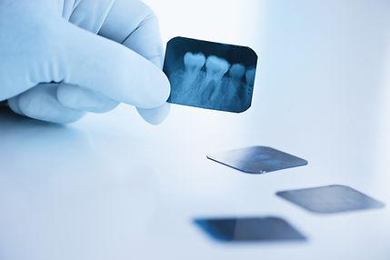 X-ray image of teeth
