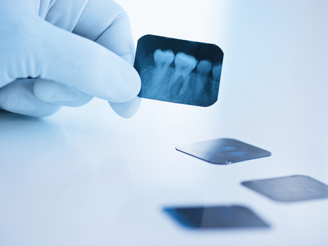 Dental Care and Your Medicare Options