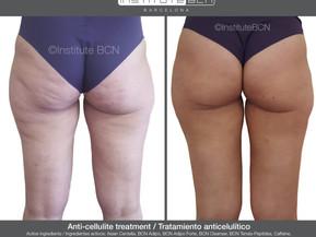 Cellulite aanpakken met de mesoceuticals van BCN, pure ingrediënten, farmaceutische kwaliteit.