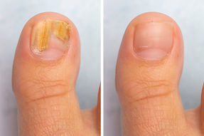 Before and after topical antifungal trea