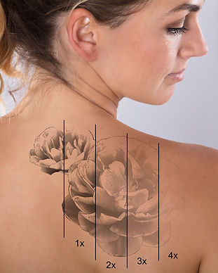 Laser Tattoo Removal On Woman's Shoulder