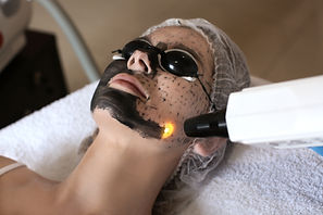 Young woman undergoing carbon peeling pr