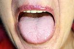 The tongue is in a white raid. Candidias