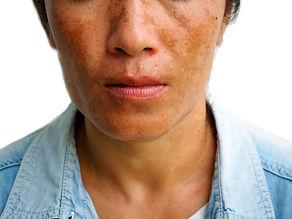 Melasma on woman face, skin problem