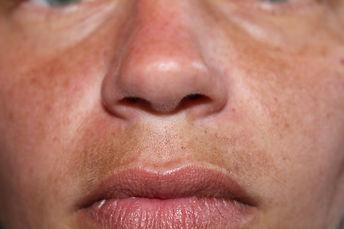 Melasma, also called mask of pregnancy,