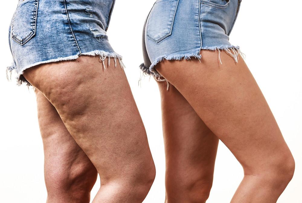 Cellulite is zich al lange tijd aan het opbouwen voordat het zichtbaar is. Ook intensieve sporters kunnen er last van hebben doordat hun lichaam dikwijls meer verzuurd is. Ook vrouwen hebben sneller cellulite omdat de vet- , spier- en bindweefselverdeling ander is dan bij mannen.