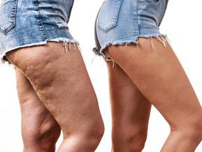 7 oorzaken die cellulite kunnen veroorzaken, beïnvloeden.