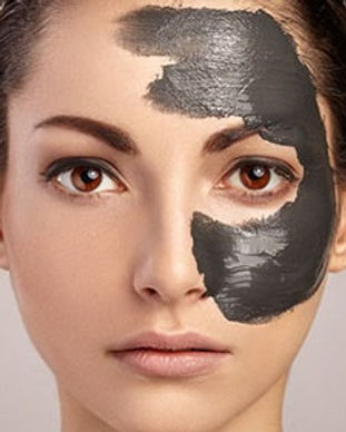 carbon-laser-facial.jpg