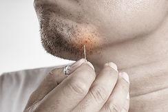 Asian man picking ingrown facial Hair wi
