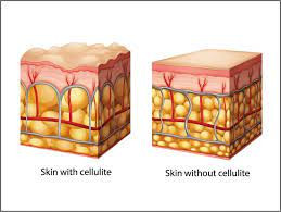 Wat is cellulite? De gele bolletjes zijn de vetcellen die vergroten. De witte lijnen zijn weefselbanden die op druk komen t staan en hierdoor de huid naar beneden trekken met als gevolg putjes en heuveltjes. Afvalstoffen en vocht hopen zich op tussen die vetcellen.