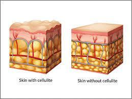Weet je wat cellulite is? Wie krijgt het? Willen we ervan af wat moeten we allemaal aanpakken?